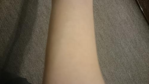 ドモホルンリンクルパッチテスト美活肌エキス製品塗布2回目24時間後