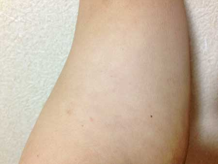 モモさんビーグレン 10-YB ローション 化粧水 パッチテスト 24時間後の状況
