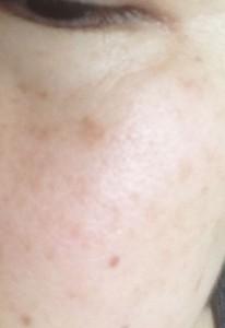 シミが目立つ肌にドモホルンリンクルの光対策ドレスクリームをつけてカバーできた