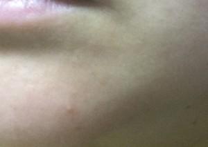 ドモホルンリンクルを使って顎の下にできたニキビ